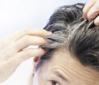premature-hair-graying.jpg